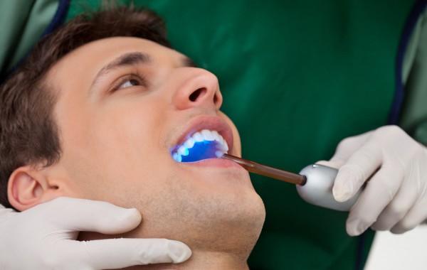 Снятие зубных отложений скалером